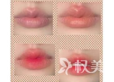 厚唇改薄术多久能恢复  价格贵不贵