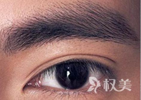 中山华美整形给男人纹眉效果好不好 爱美不是女性的专利