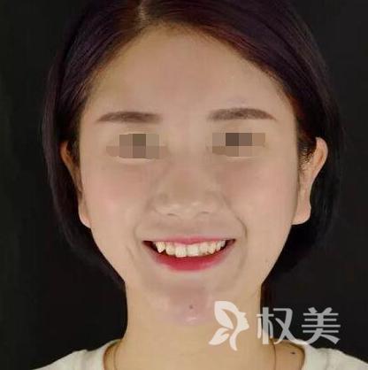矫正牙齿过程分享  我在成都锦江极光口腔感受到 牙齿可以这么美