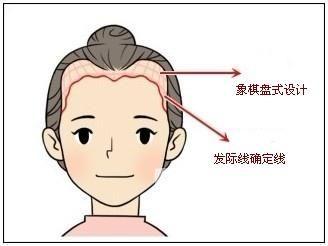 种发际线多少钱 头发卷曲能种植美人尖吗