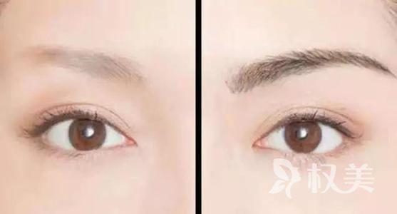 雄激素性脱发症状有哪些 眉毛种植需要多少钱