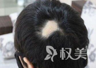 斑秃是什么病的前兆 西安新锐疤痕植发多少钱