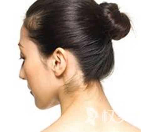 杯狀耳矯正價格是多少 上饒協和醫院整形科好嗎