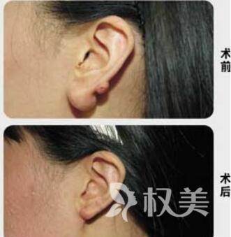 上海海华耳垂畸形的修复方法有哪些  完全释放你的细致之美
