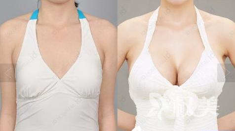 厦门思明美莱整形医院手术隆胸选择假体材料 迷人乳沟凹凸有致