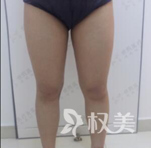 大腿吸脂案例  告别我的大象腿  拥有迷人大长腿