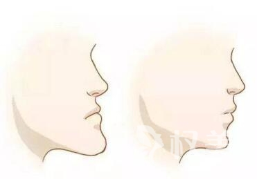 成人牙齿地包天的矫正方法有哪些  效果好不好