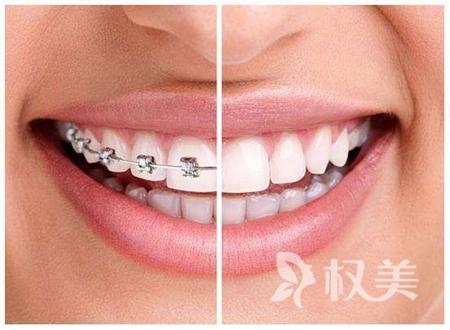 合肥牙齿矫正价位是多少 合肥美奥口腔医院地址