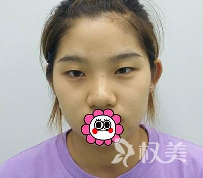 终于有了心心念念的双眼皮 说说我在西宁韩美整形医院做切口双眼皮手术