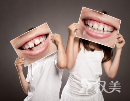 烤瓷牙和美容冠区别是什么 北京圣贝口腔医院地址