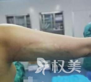 重庆军美整形医院手臂吸脂术 终于可以和我的蝴蝶袖说再见了