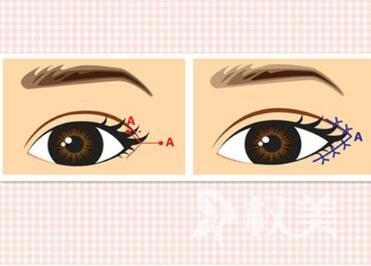 开外眼角手术的效果好不好  美萌电眼一步到位