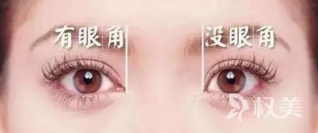 开外眼角后多久能恢复自然  一般5-7天就可以消肿