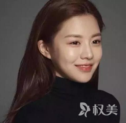 韩国模特高允真整容脸 扒出整容前照片让人大吃一惊