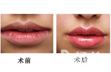 唇形不美怎么辦  漂唇術后多久可以恢復