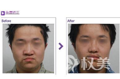 小孩多大可以做唇腭裂效果手术  效果好不好