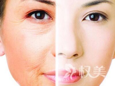 淄博陽光整形醫院電波拉皮美容效果好不好 緊致肌膚減少皺紋