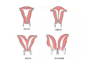 阴道再造手术安全不安全呢  哪些女性适合做阴道再造