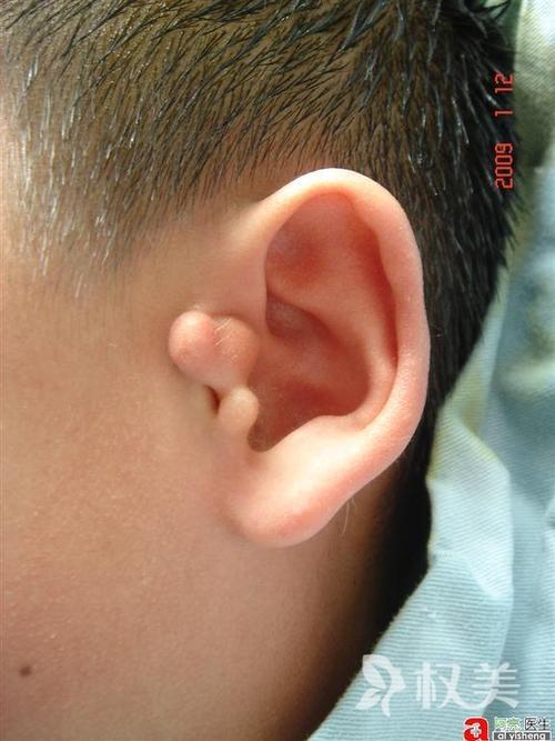 副耳整形術后會不會留疤  一般3個月后疤痕不明顯