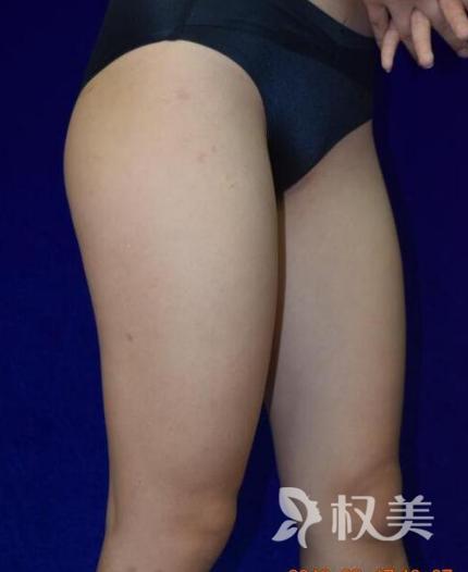 """我在贵阳美贝尔 做水动力吸脂 完美甩掉""""大象腿"""""""