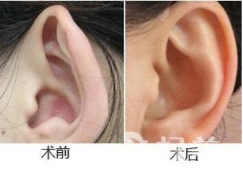 耳廓畸形有哪些類型  治療方法有哪些