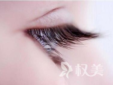 怎么让睫毛变长 北京红旗植发做睫毛种植效果怎么样