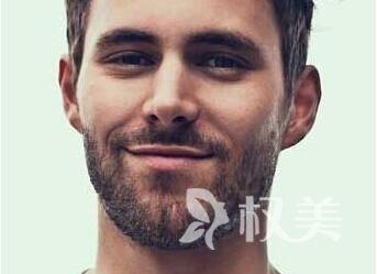 胡须稀少怎么办 天津熙朵胡须种植价格
