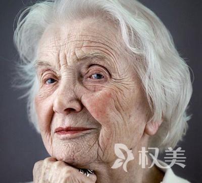 激光祛老年斑  祛斑美肤 双效合一