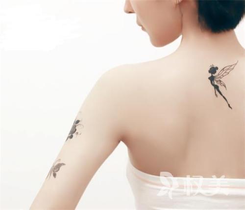 激光祛纹身 非创伤的治疗 不易留疤痕