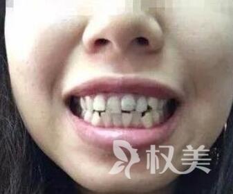 在我做完牙齿矫正  发现爱笑的女生运气果然都不会太差