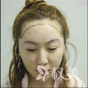 大额头太难看  选择发际线种植后  变身小脸美女