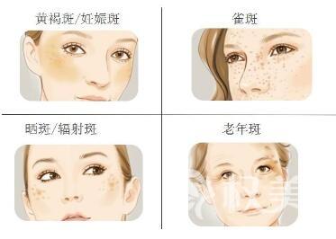 北京长虹医院激光祛黄褐斑的效果好吗  术后注意事项有哪些