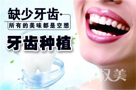 全口牙种植  整体协调美观不磨牙