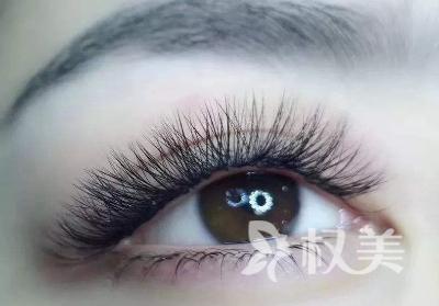 合肥植发一加一医院规范吗 睫毛种植会伤害眼睛么