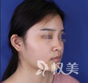 假体隆鼻案例  让我也能拥有傲人侧颜  做侧颜女神
