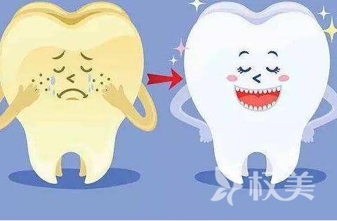 重慶潔牙哪里好 超聲波潔牙能維持多久