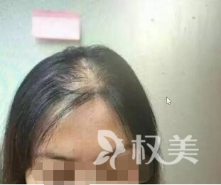 铜陵第四人民整形医院做女性头顶加密植发效果好吗  自然效果长久