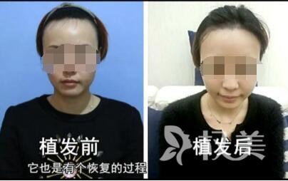福州臺江整形醫院發際線種植手術效果怎么樣  如何避免后遺癥