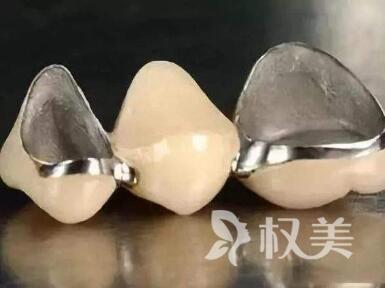 烤瓷牙的类型有哪些  具体优势有哪些