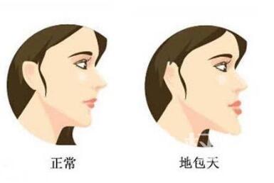 牙齒地包天矯正有哪些方法  有沒有年齡限制
