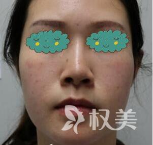 美丽并不晚 说说我在郴州唯美整形医院做假体隆鼻+耳软骨垫鼻尖+鼻小柱延长术