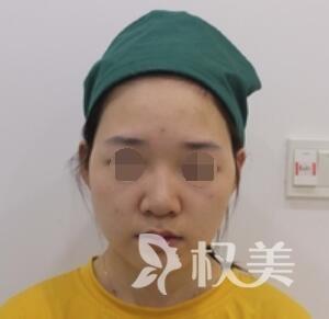 面部吸脂案例  赶走大饼脸  拥有梦寐以求小V脸