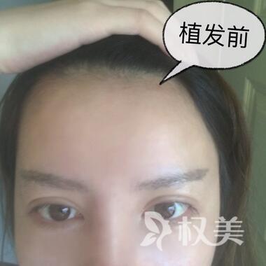 """选择北京科发源做发际线调整 美丽就在一""""线""""间"""