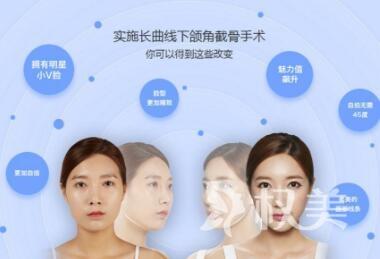 下颌角整形有哪些优势  精细无痕  脸型放心变