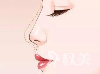 鼻综合整形手术有哪些优势  无痕安全  提升气质