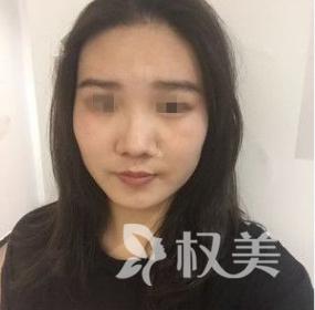 郑州帝尔美整形医院做面部吸脂术 让我下颌缘曲线流畅五官更清晰了