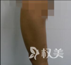 大腿吸脂改善我的大粗腿  变身纤纤玉腿