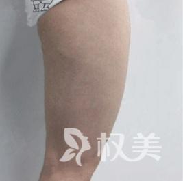 北京唯颜时代整形做大腿吸脂术效果好不好 看看术前术后对比图就知道啦