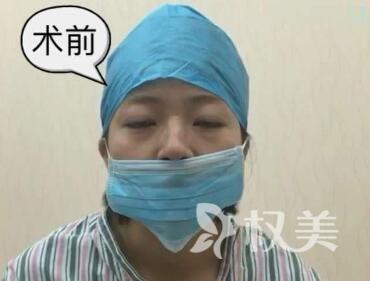 歪鼻矫正手术安不安全呢  术后几天就能看著�h�奔跑恢复