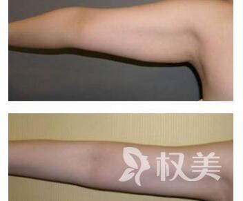 手臂吸脂的方法有哪些  术后多久可以消肿止痛